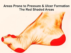 Diabetic Foot Ulcer areas