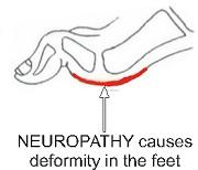 Neuropathy Causes deformity in the diabetic Foot