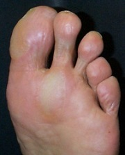 Diabetic Foot Callus