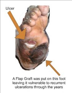 Diabetic Foot Flap Graft