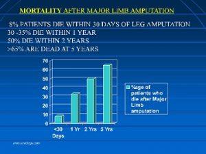 Mortalité après amputation du pied diabétique