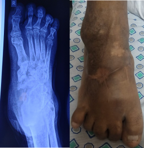 Charcot foot Best diabetic foot surgeon india , best diabetic foot doctor india ,best diabetic foot surgeon in Hyderabad