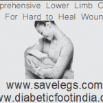 , best diabetic foot doctor india ,best diabetic foot surgeon in Hyderabad , best podiatrist in india , podiatrist in Hyderabad , best doctor for diabetic foot , best foot doctor , best surgeon for diabetic foot surgery in india
