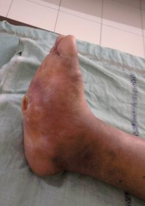 Diabetic Charcot Foot